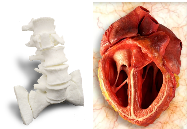 Patient-specific <br>Anatomical Models