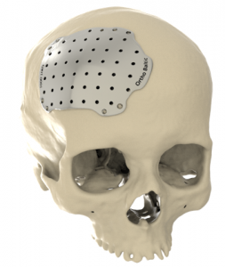 Cranial implants plate