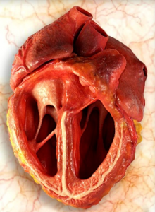 Anatomical model - heart (material: plaster)