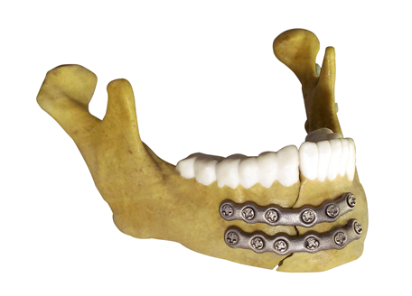Anatomical model - mandible fracture fixation
