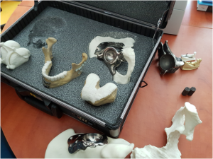 amples of patient-specific implants and anatomical models