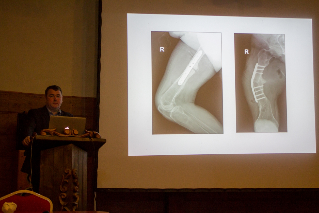 Case Story presentation by V. Toliušis. Fixing femoral deformity by using patient-specific surgical guides
