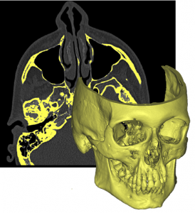 3D anatomical reconstruction