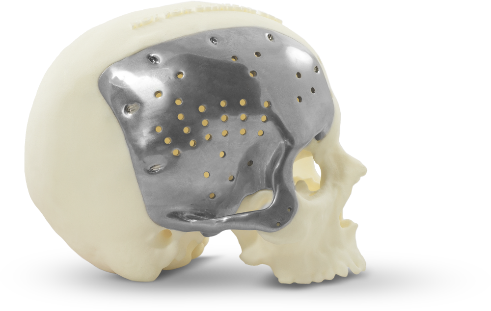 Patient-specific <br>Cranial Implants