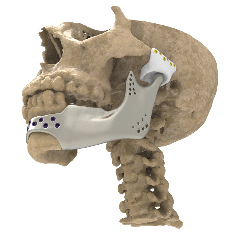 Patient-specific <br>TMJ Endoprosthesis