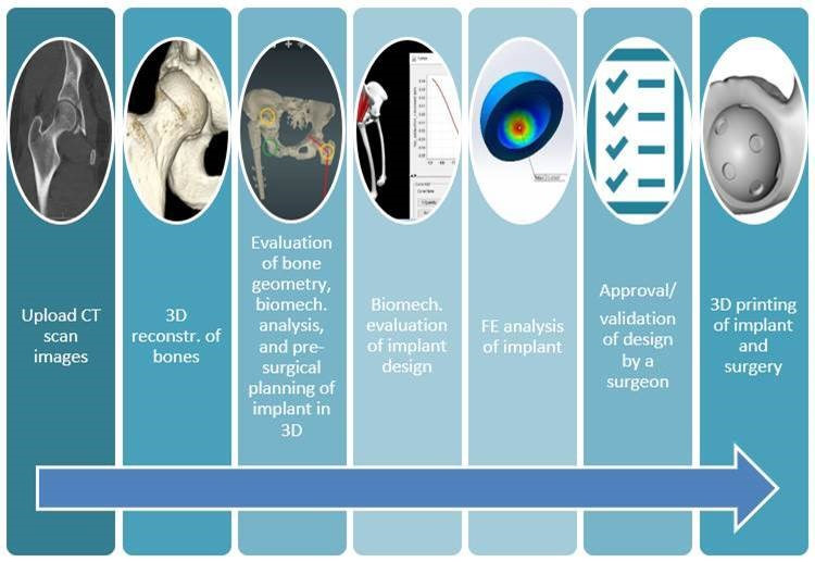 Figure 1. The workflow of pre-surgical planning of custom implant in MICE