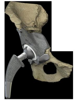articulation de la hanche