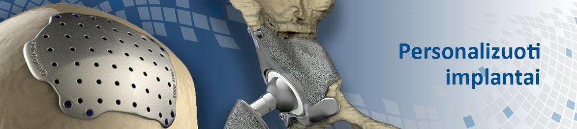 Personalizuoti implantai